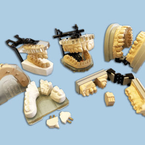 Model & Tray Systems